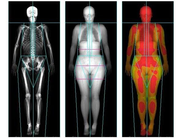 Dietas y Composición corporal
